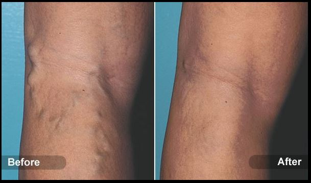 sclerotherapy4